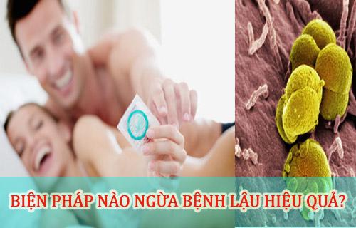 phòng ngừa bệnh lậu biến chứng hiệu quả