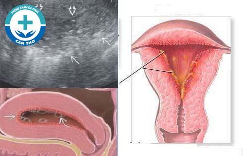 viêm nội mạc cổ tử cung