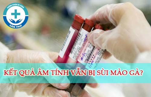 Bị sùi mào gà nhưng xét nghiệm HPV âm tính khi nào? Vì sao?