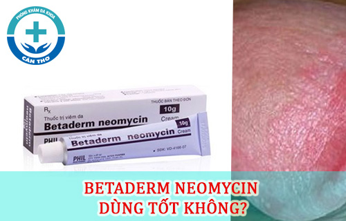 Cách dùng Kem Betaderm Neomycin bôi chữa viêm da nhanh hết bệnh