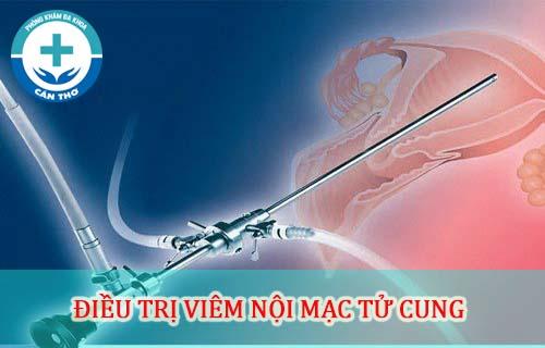 phương pháp điều trị viêm nội mạc tử cung tốt nhât