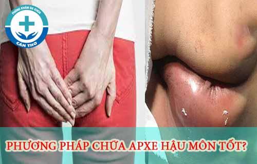 Phương pháp điều trị apxe hậu môn nhanh khỏi nhất và chi phí.