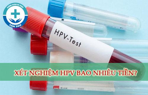 Xét nghiệm virus HPV bao nhiêu tiền? Khi nào có kết quả? Ở đâu?